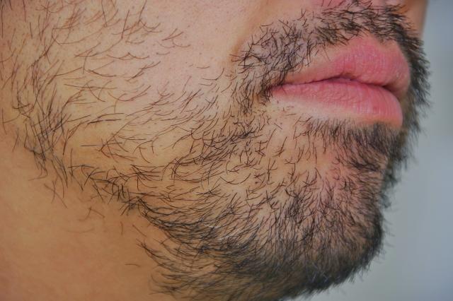 メンズが最低限脱毛するべき箇所
